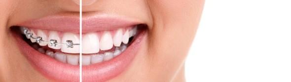 La ortodoncia no sólo mejora la sonrisa sino la salud en general.